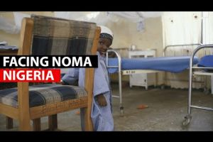 Embedded thumbnail for Facing noma