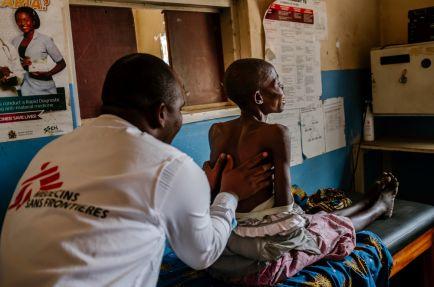 Kingsley Makwale MSF clinician examining Aisha at Mbenje Health Centre [Photo: Isabel Corthier/MSF]